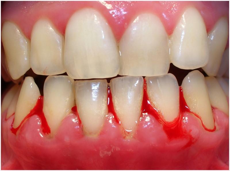 eerst flossen of eerst tanden poetsen