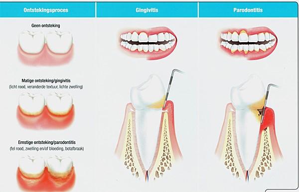 gevoelig tandvlees wat te doen